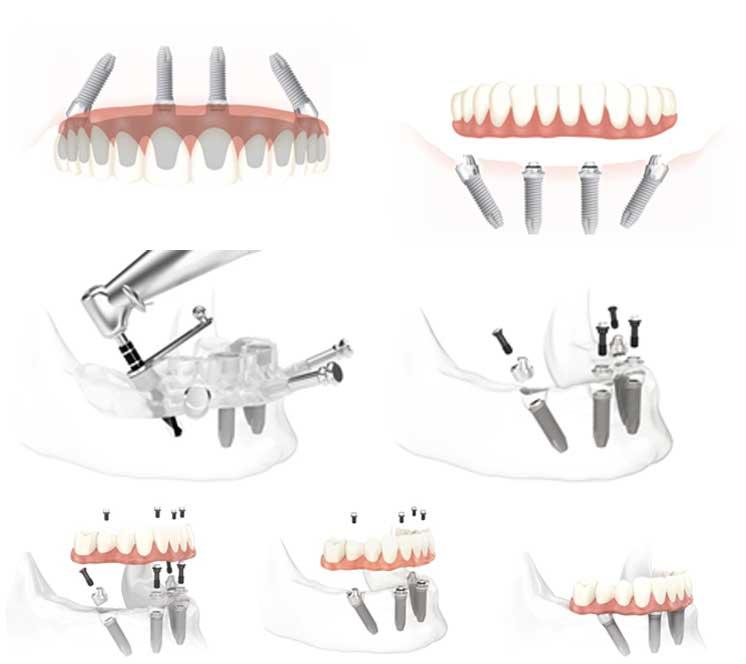 bonturi-protetice-si-lucrarea-dentara