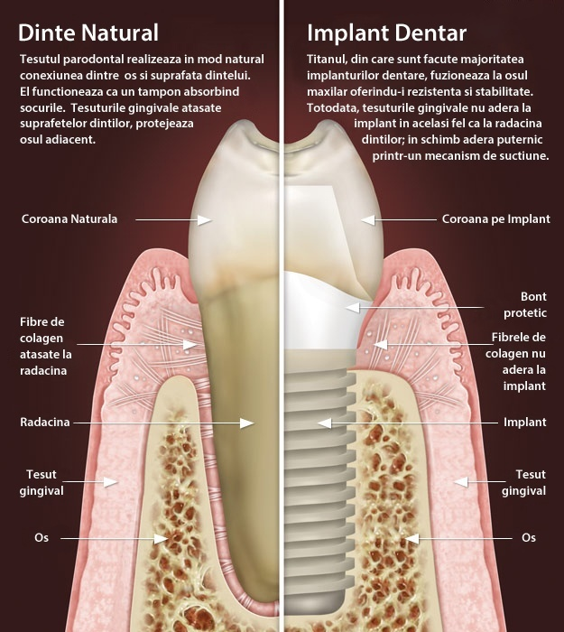 dental-implant-vs-natural-tooth copy