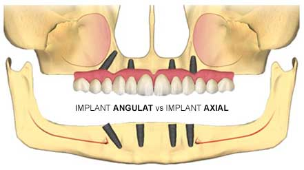implant-angulat-vs-implant-axial