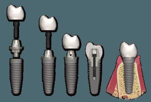 implant dentar si coroana cimentata