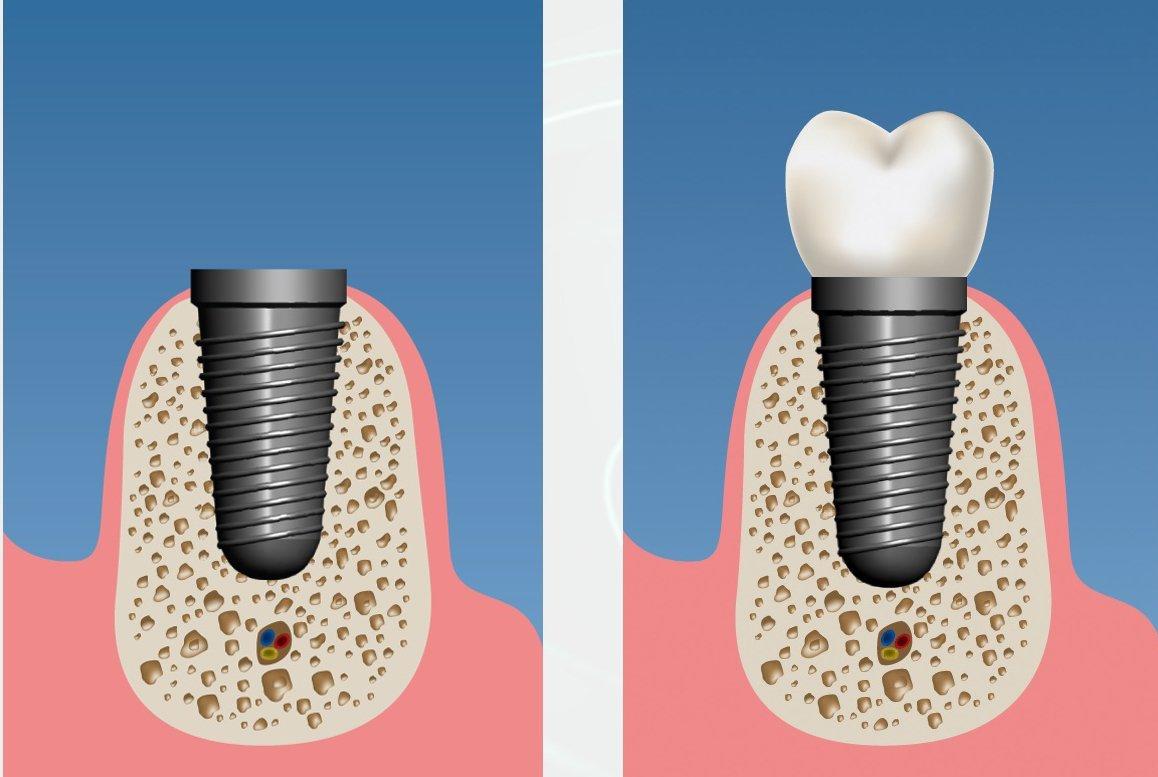 implant imediat3