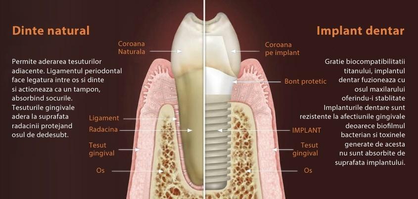 pierde greutatea din maxilar pastile de slabit alevia pareri