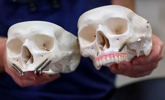 lucrari-dentare-qz