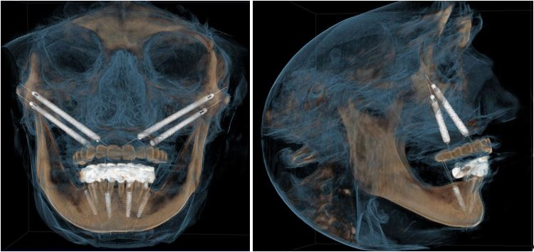 tomografie-a-intregului-masiv-facial