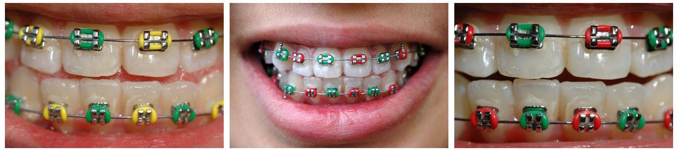 implantodent junior clinica copii_4