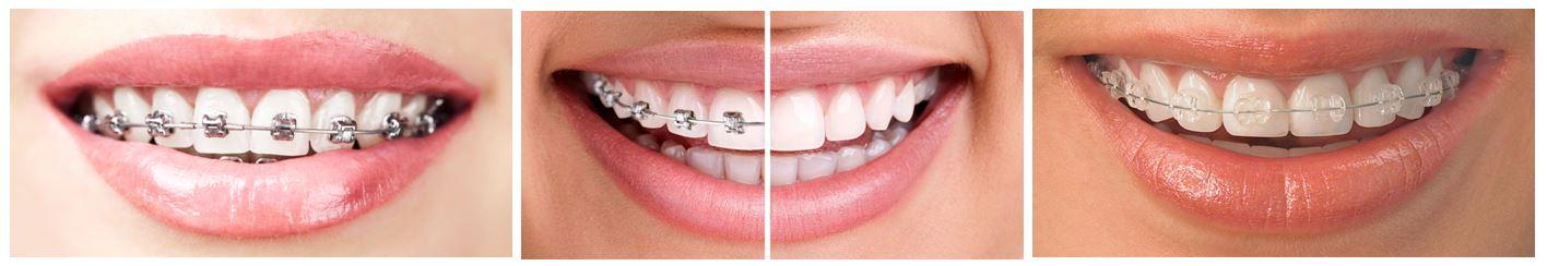 implantodent ortodontie adulti si copii copii_3