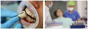 4A_estetica dentara verificare culoare cub cerec