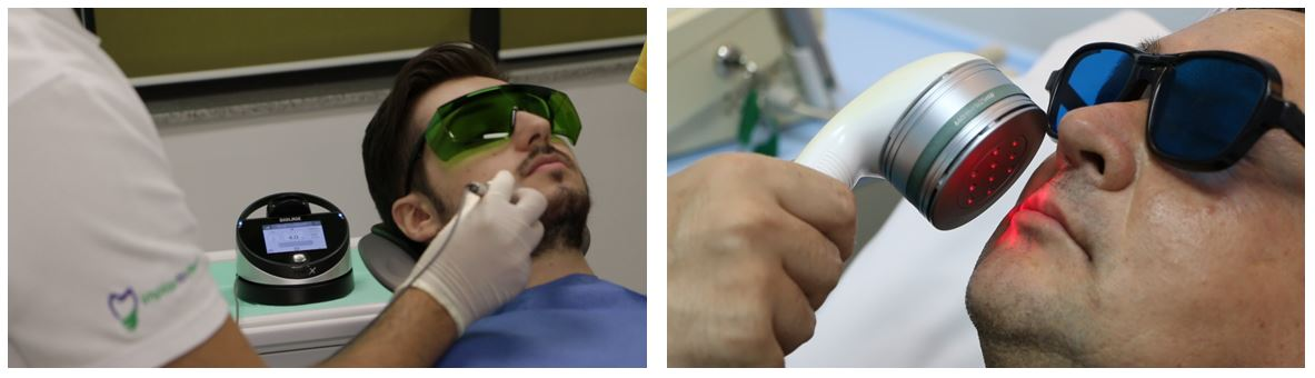 11_laser dentar chirurgical