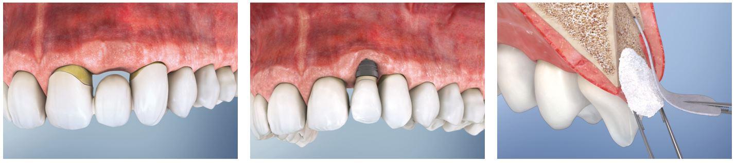 conservarea alveolei dentare