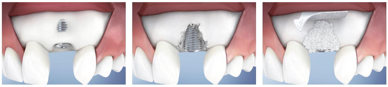 dehiscenta implant dentar