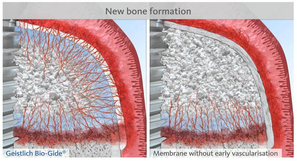 regenerarea osoasa