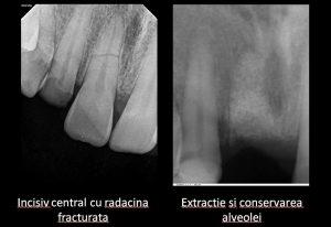 Conservarea alveolei dentare, augmentarea osoasa a alveolei