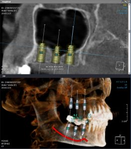 Tomografie dentara cu fascicul conic (CBCT)