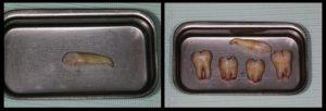 Extractia caninului si a molarilor de minte inclusi