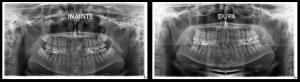 Radiografie panoramica inainte si dupa extractia dintilor inclusi