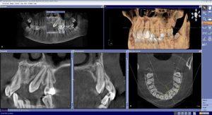 Tomografie dentara canin maxilar inclus
